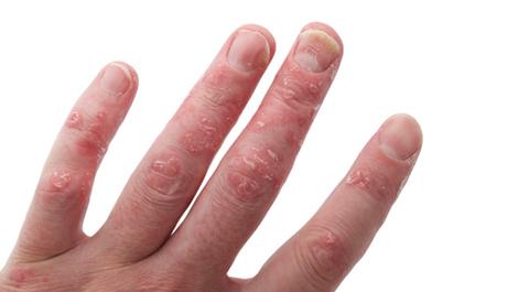 Viêm khớp vẩy nến ảnh hưởng xấu đến hệ thống xương