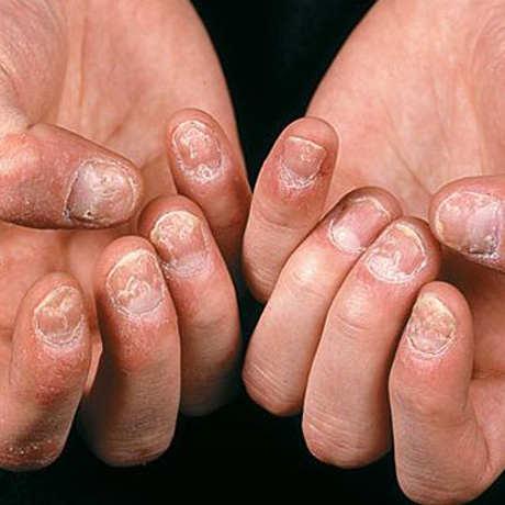 Một số mẹo để kiểm soát tốt căn bệnh vẩy nến – Phần 1