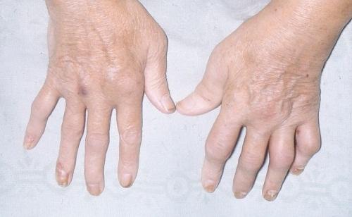 Một số mẹo để kiểm soát hiệu quả bệnh vẩy nến - Phần 2