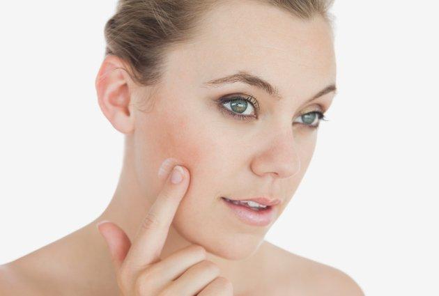 Điều trị mụn trứng cá: Từ bỏ thói quen chạm tay lên mặt