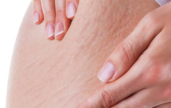 Khi bị rạn da bụng, đùi, mông – Làm sao chữa khỏi?