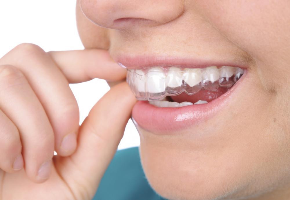 8 cách chăm sóc để hạn chế tình trạng mất răng sớm