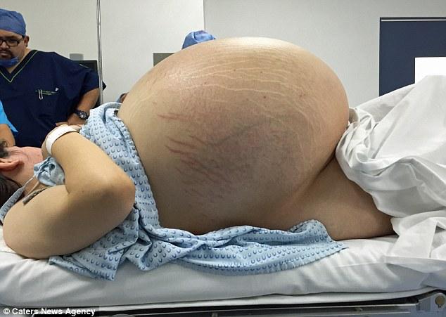 Tin sốc: Phụ nữ 24 tuổi có khối u nang buồng trứng 33kg